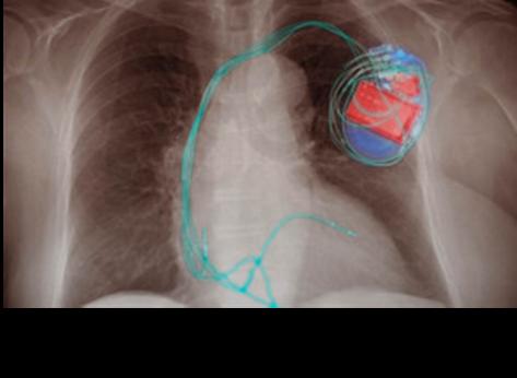 Generator im Nanoformat schützt das Herz